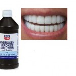 5 Teeth-Whitening Tips for Frugal Folks